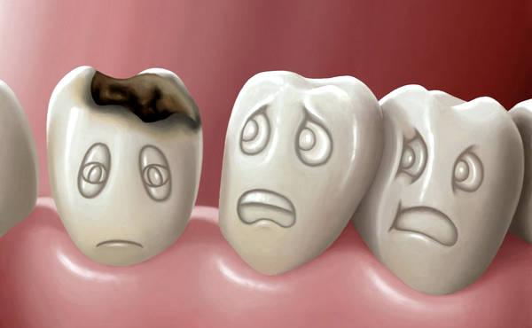 Эффективные способы отбеливания зубов в домашних условиях